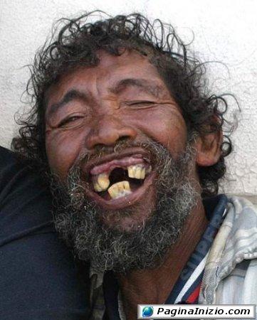 Un sorriso a 32 denti!