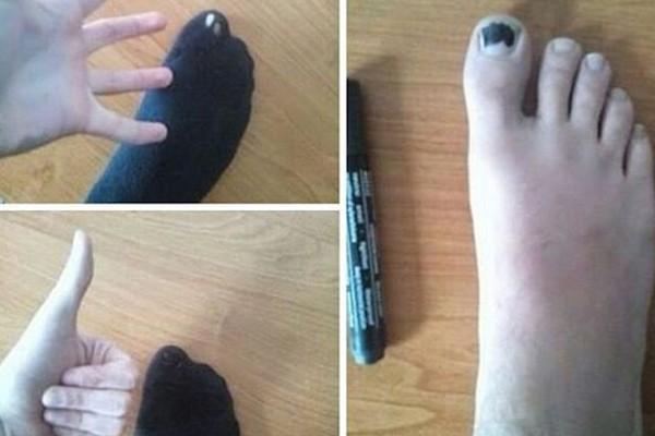 Rimedio al buco nei calzini