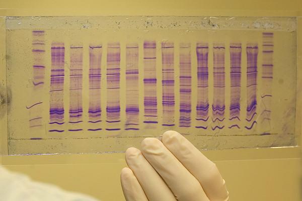 Profili DNA