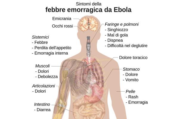 Sintomi del virus Ebola
