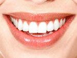 Riconosci i sorrisi delle star del Cinema?